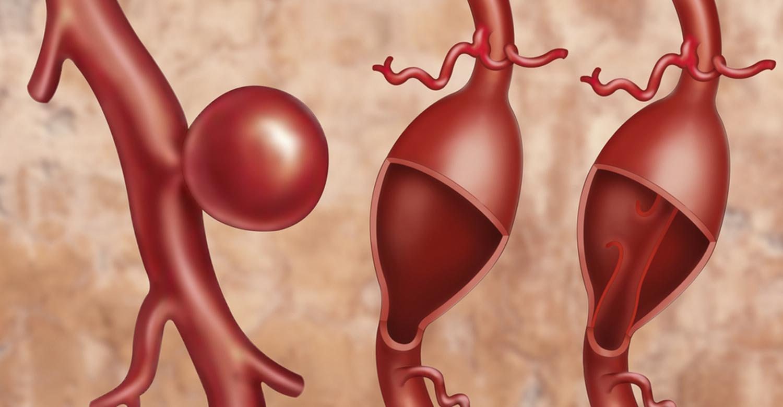 КТ аорты с болюсным усилением