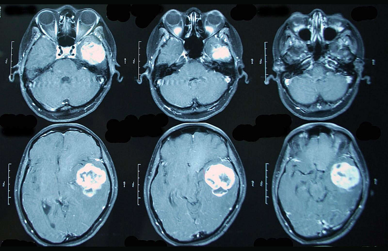 КТ головного мозга в Киеве
