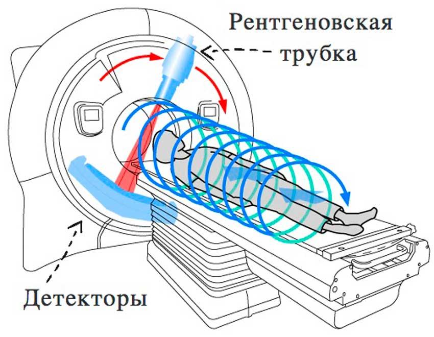 Отличия СКТ от МРТ